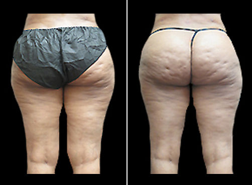 Female Lipo Treatment Before & After