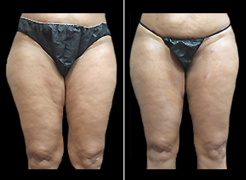Before And After Female Lipo Treatment