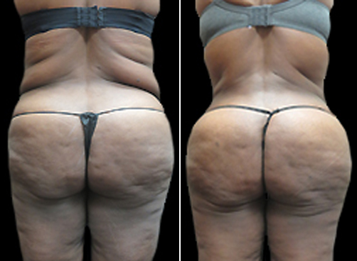 Before & After Female Lipo Treatment