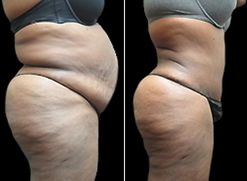 Female Lipo Treatment Results