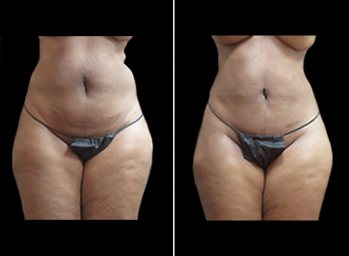 Female Liposuction Procedure Before And After
