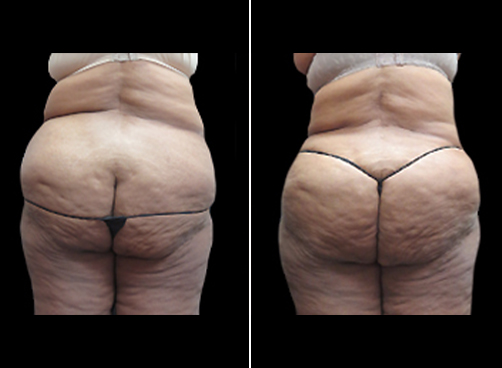 Female Liposuction Procedure Before & After