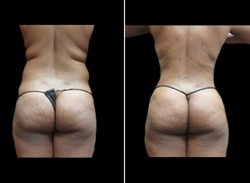 Before And After Female Liposuction Procedure