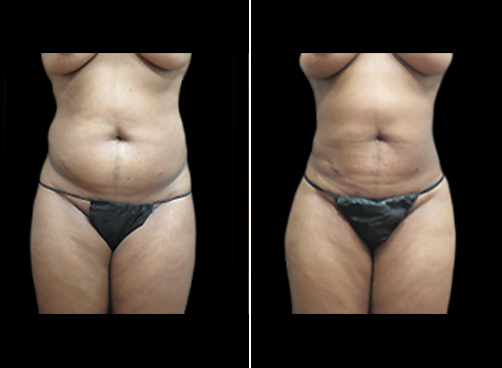 Before & After Female Liposuction Procedure