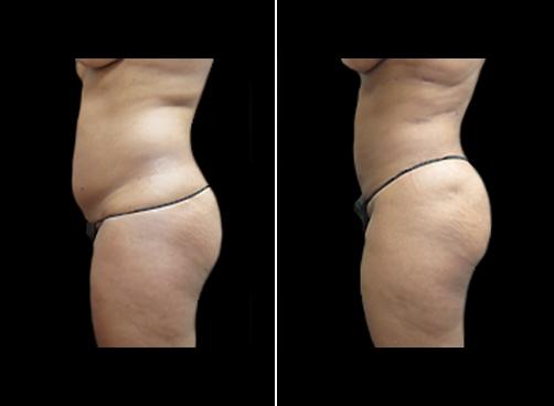 Female Liposuction Procedure Results