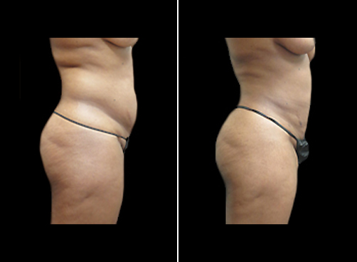 Female Lipo Procedure Before And After
