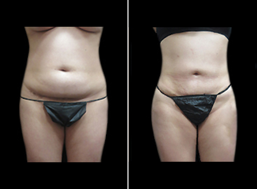 Before And After Female Lipo Procedure