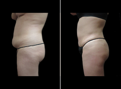 Before & After Female Lipo Procedure