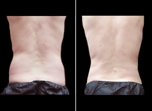 Before & After Liposuction Surgery For Men