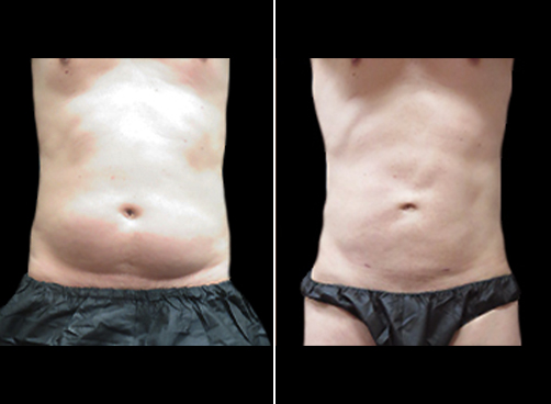Liposuction Surgery For Men Results