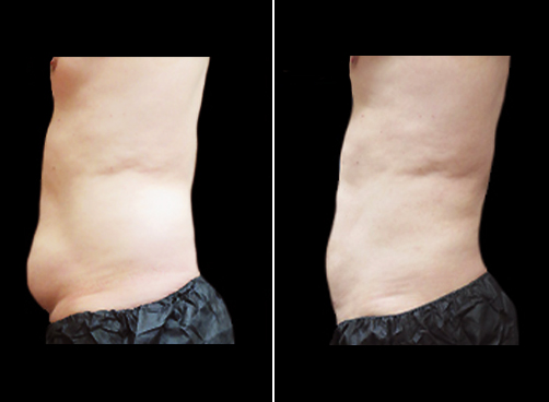 Lipo Surgery For Men Before And After