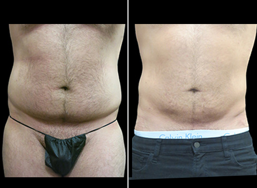 Before & After Lipo Surgery For Men