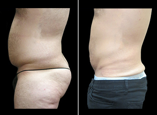 Liposuction Treatment For Men Before And After