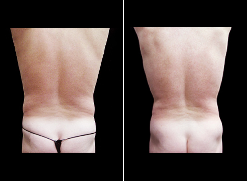 Liposuction Surgery For Men Before And After