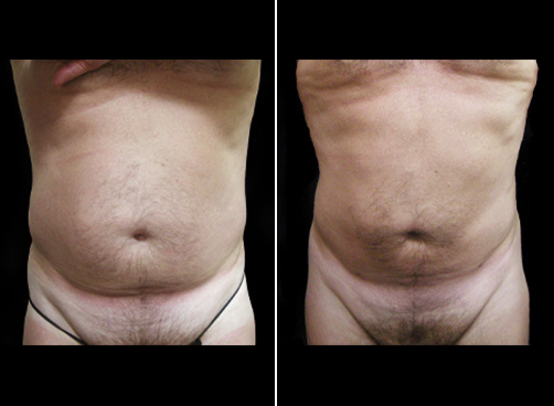 Liposuction Surgery For Men Before & After