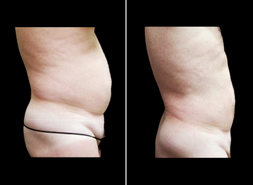 Before And After Liposuction Surgery For Men