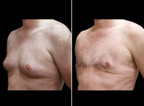 Lipo And Male Breast Reduction Results