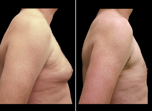 Lipo Surgery And Male Breast Reduction Results