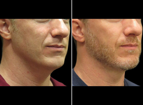 Before And After Laser Neck Lift Treatment