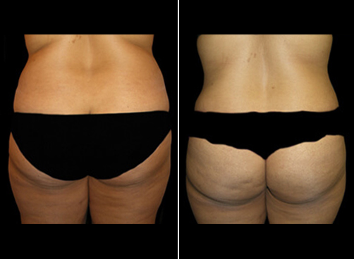 Super Wet Liposuction Surgery Before And After