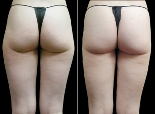 Super Wet Liposuction Surgery Before & After