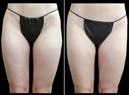 Before And After Super Wet Liposuction Surgery