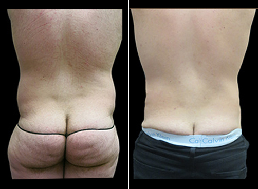 Before & After Super Wet Liposuction Surgery