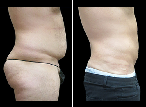 Super Wet Lipo Surgery Before And After