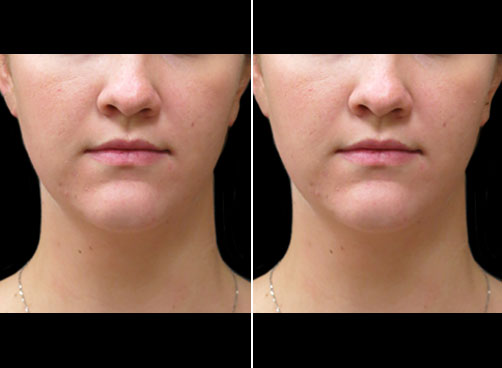 Before & After Laser Neck Lift Treatment