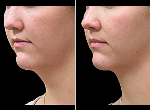 Laser Neck Lift Treatment Results