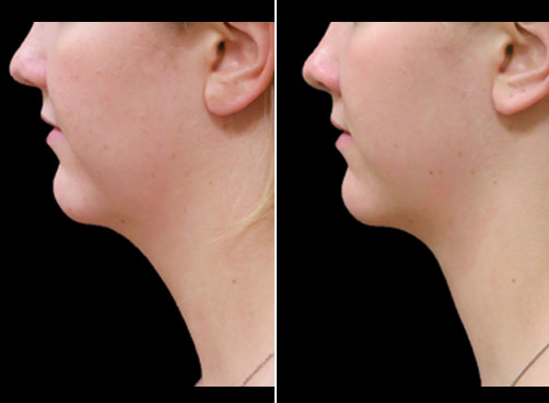 Laser Neck Lift Surgery Results
