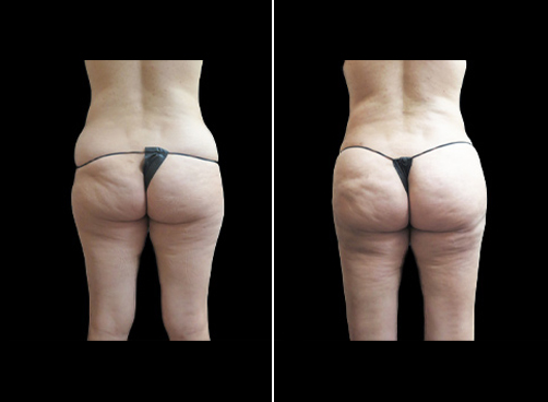 Before And After Super Wet Lipo Surgery