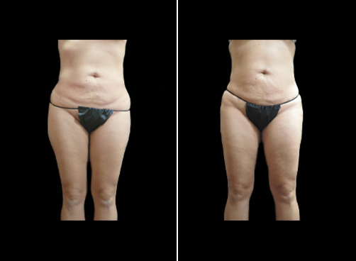 Before & After Super Wet Lipo Surgery