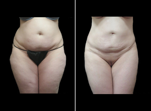 Super Wet Lipo Surgery Results