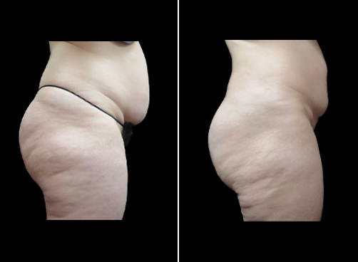 Super Wet Liposuction Treatment Before And After
