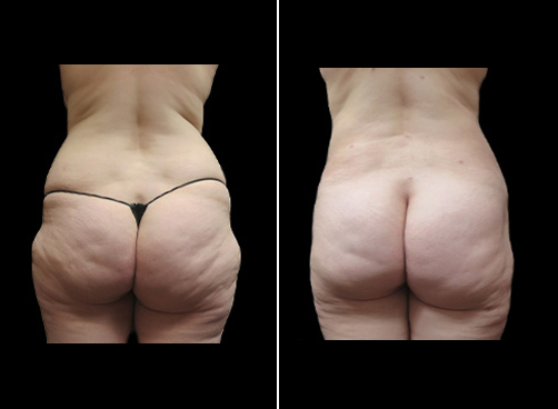 Super Wet Liposuction Treatment Before & After