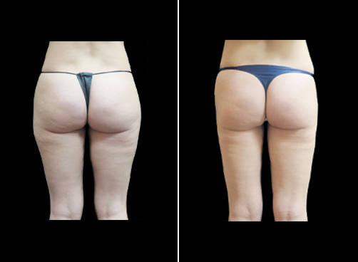 Before & After Super Wet Liposuction Treatment
