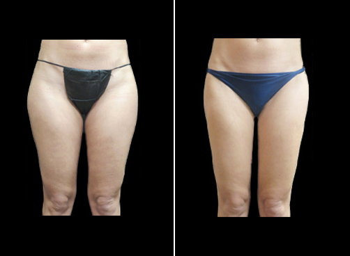 Before And After Super Wet Liposuction Treatment