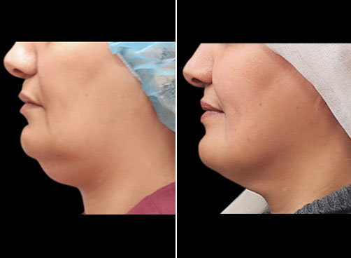 Before And After Laser Neck Lift Surgery