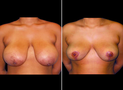 Lipo And Breast Reduction Before And After