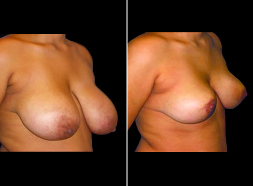 Lipo And Breast Reduction Before & After