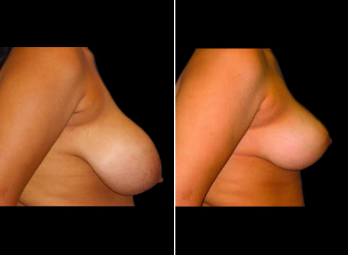 Lipo And Breast Reduction Results