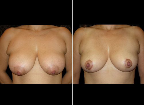Before And After Lipo & Breast Reduction