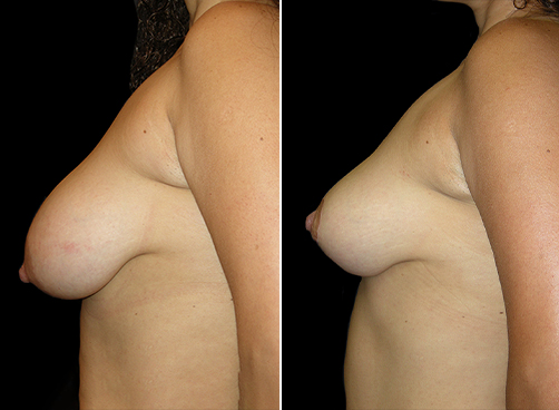 Liposuction & Breast Reduction Before And After
