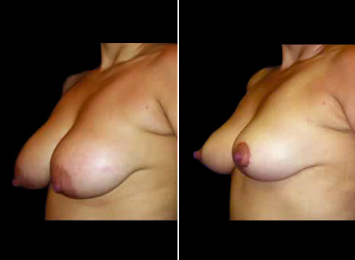 Before & After Lipo And Breast Reduction