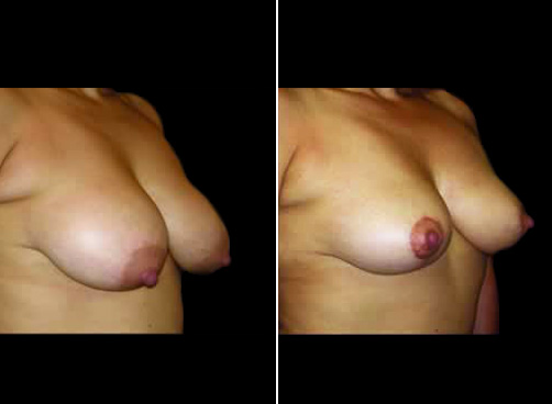 Before And After Lipo And Breast Reduction
