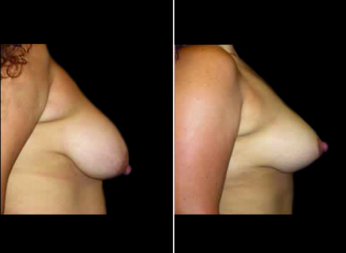Before & After Lipo & Breast Reduction