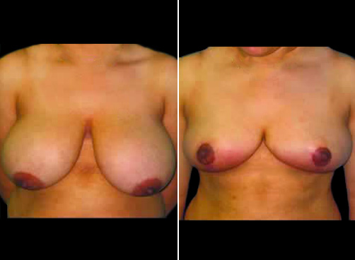 Liposuction & Breast Reduction Before & After
