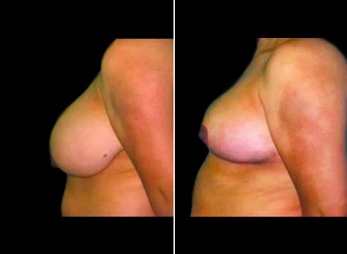 Liposuction And Breast Reduction Results
