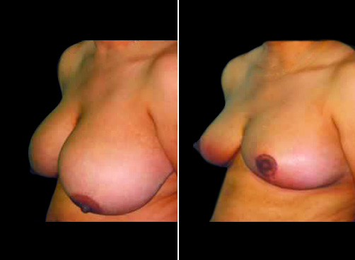 Liposuction And Breast Reduction Before & After
